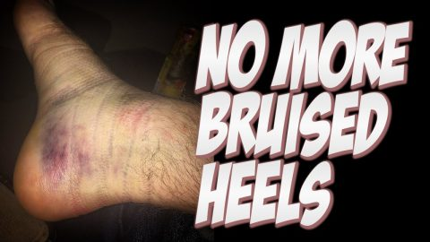 NO MORE BRUISED HEELS AND HOW TO HEAL THEM !!! - NKA VIDS - - Nka Vids Skateboarding